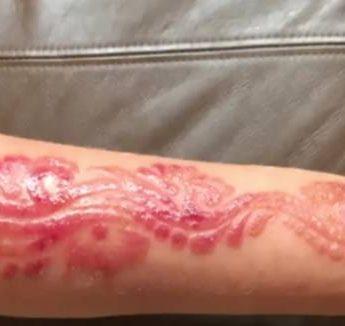 Uwaga na tatuaże z henny!